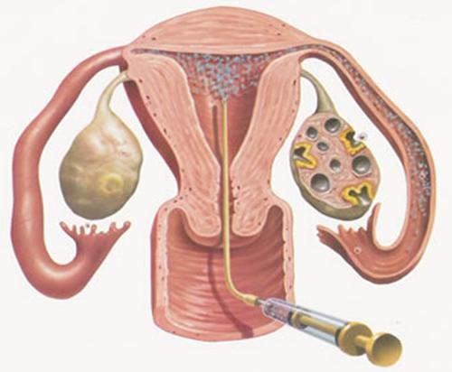 spermatozoidi-zhivut-v-matochnih-trubah-polosti