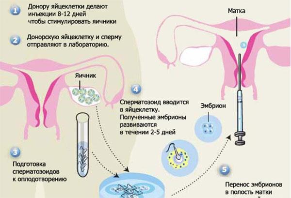 net-spermatozoidov-gruppi-a